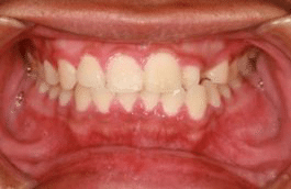 swelling of the gums