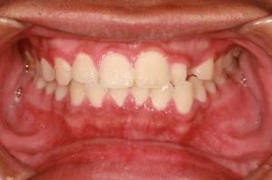 peridontal inflammation of the gums