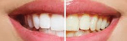 before & after tooth whitening