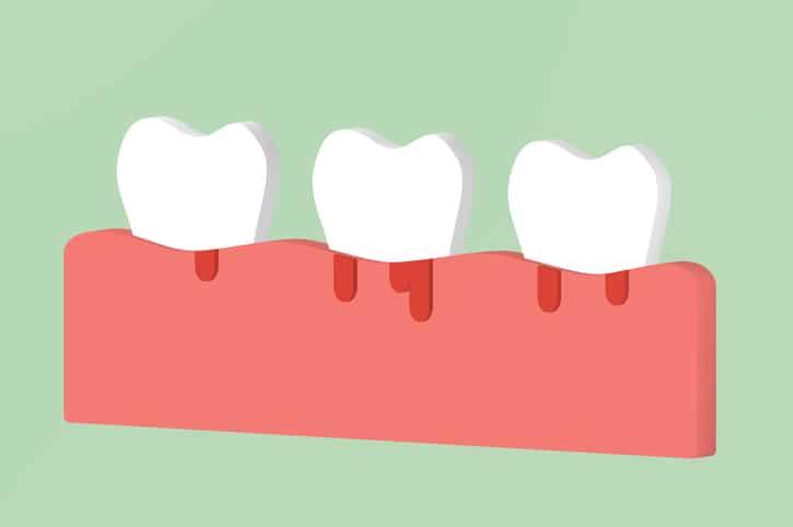 run gum swelling